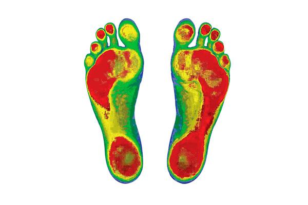 Willaston Physio & Rehab представили 3d сканер стоп